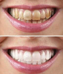 Before and after: stained teeth on top and shiny white teeth on bottom